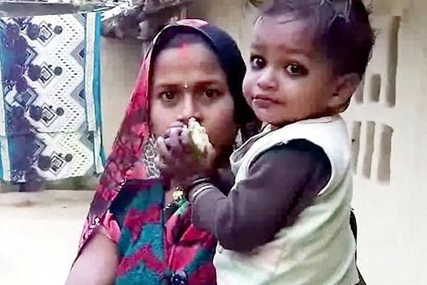 印度一3岁男童长30厘米尾巴究竟是
