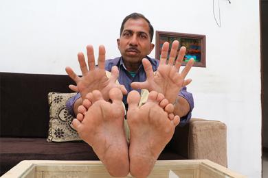 木匠有28个手指脚趾,创造了一个无太多用处的吉尼斯世界纪录